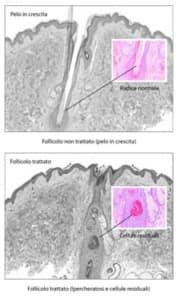 funzionamento-laser-depilazione